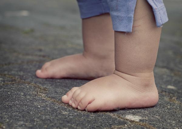 WadkaPostawka – cykl o wadach postawy. Dziś stopy płaskie!